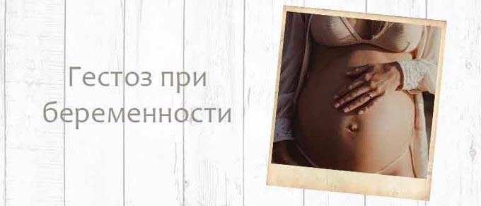 гестоз беременных