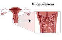 14 факторов развития вульвовагинита