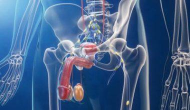 Необходимость и виды операций при аденоме предстательной железы