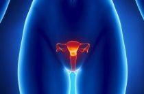 Консервативное и хирургическое лечение фибромы матки