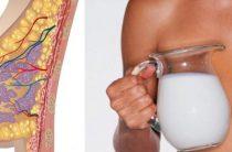 Профессиональное лечение галактореи — залог выздоровления