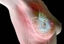 Препараты для лечения гормонозависимой опухоли