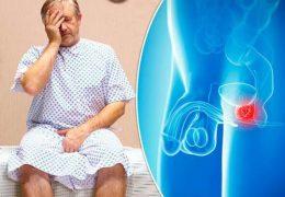 Можно ли избежать хронического простатита после 40 лет