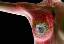 Причины инвазивного рака молочной железы