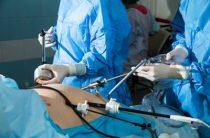 Интересные факты о лапароскопии маточных труб