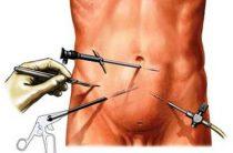 Лапароскопия при лечении варикозного расширения вен в мошонке