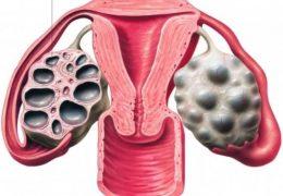4 основных симптома мультифолликулярных яичников