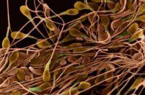 Восстание мертвых сперматозоидов при некроспермии