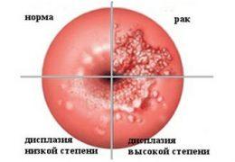 7 видов операции при лечении рака шейки матки