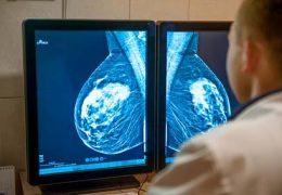 Вероятность рецидива рака молочной железы