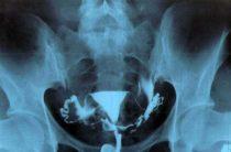 Что можно увидеть на рентгеновском снимке маточных труб