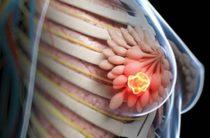 Лечение и профилактика саркомы молочной железы