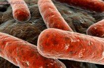 Все причины и симптомы туберкулеза матки