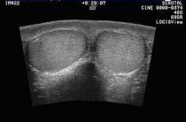 Ультразвуковое сканирование (УЗИ) мошонки