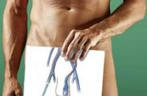 Расширение вен яичек у мужчины или варикоцеле