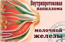 Методы лечения внутрипротоковой папилломы молочной железы